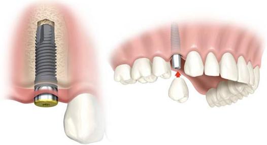 centro de especialidades dentales: implantes, miniimplantes y tratamientos bucales en Fuenlabrada